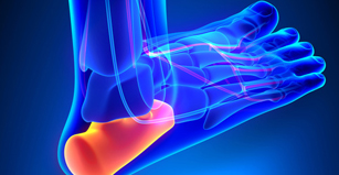 Plantar Fasciitis can range from straining a ligament in your arch to poor posture and the way you walk, leading to pain and swelling - Fircrest, Tacoma, University Place, Washington